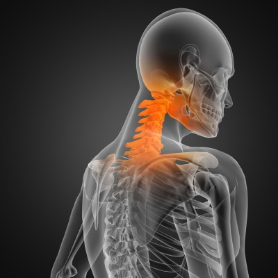 Facet Joint and Neck Injuries From Car Accidents